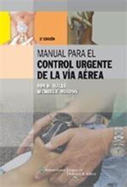 Manual para el control urgente de la vía aérea