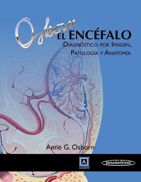 """Encéfalo, El """"Diagnóstico por Imágen, Patología y Anatomía"""""""