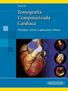 """Tomografía Computarizada Cardíaca """"Principios, técnica y aplicaciones clínicas"""""""