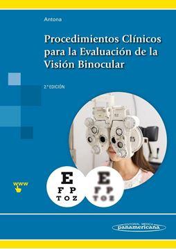 Procedimientos Clínicos para la Evaluación de la Visión Binocular
