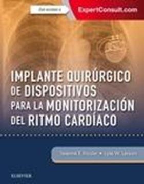 Implante quirúrgico de dispositivos para la monitorización del ritmo cardiaco +  experconsult