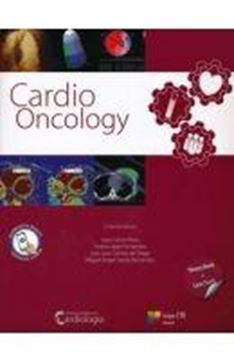 Cardio Oncology 2 tomos (2015)