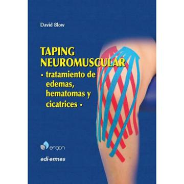 Imagen de Taping neuromuscular: Tratamiento de edemas, hematomas y cicatrices